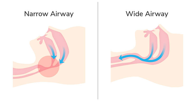 The Nuloft Pillow opens up your airway by keeping your neck in a natural position, reducing snoring.